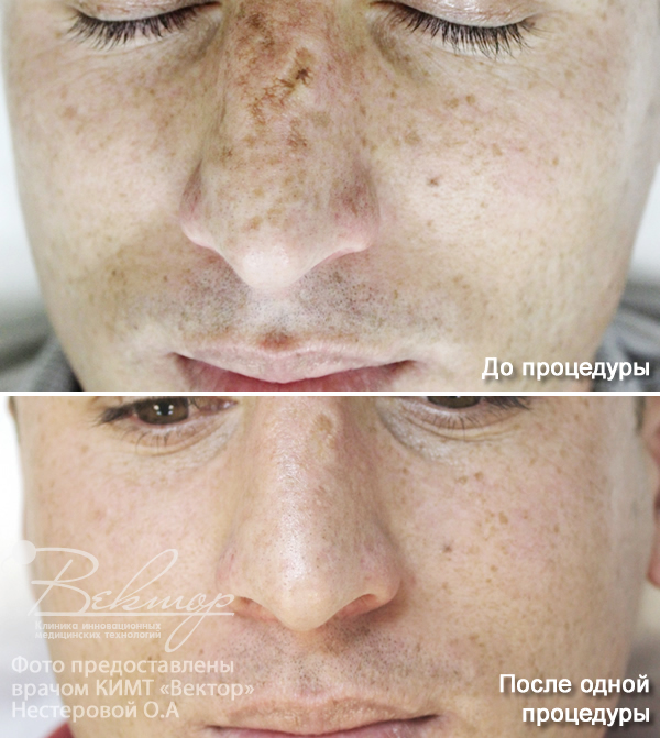 Как Избавиться От Прыщей От Аллергии