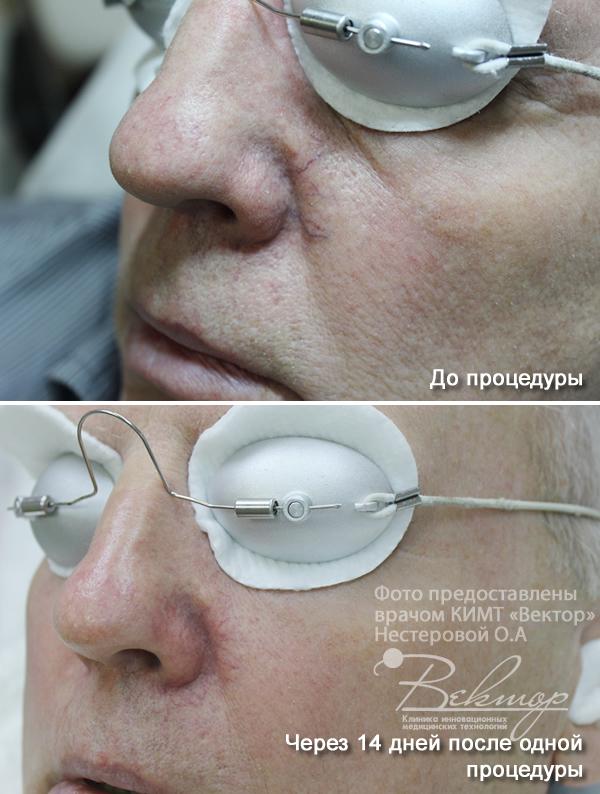 лазерное лечение сосудистых образований