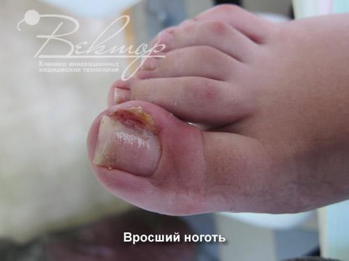 Вросший ноготь лечение мазь