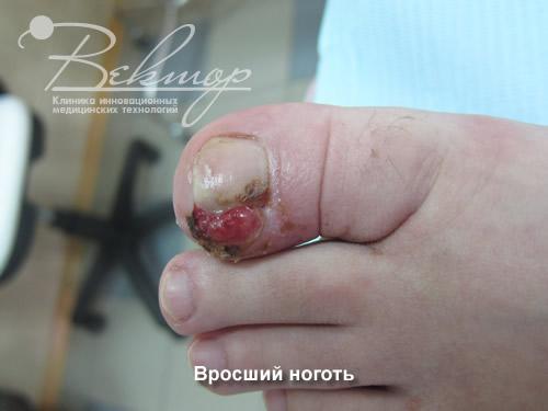 Вылечить грибок ногтей на ногах в калининграде