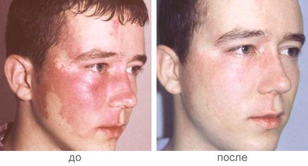 Препараты длялечения варикоза